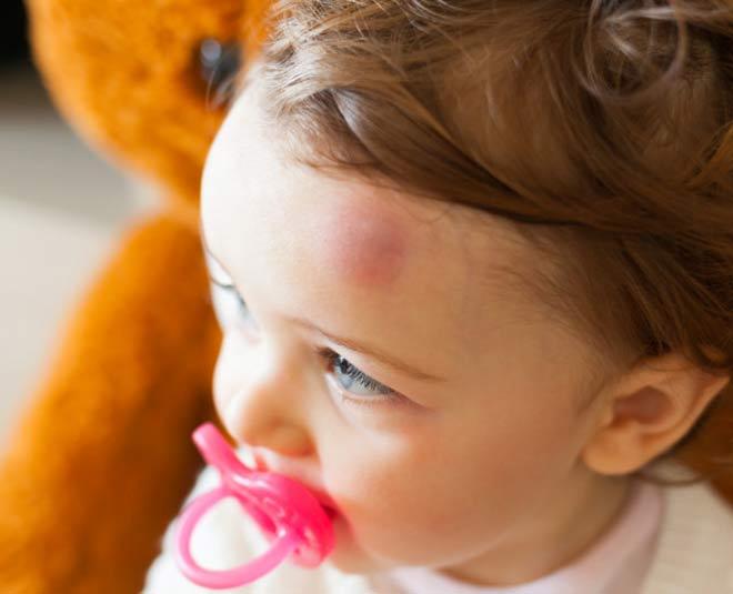 kids swelling main