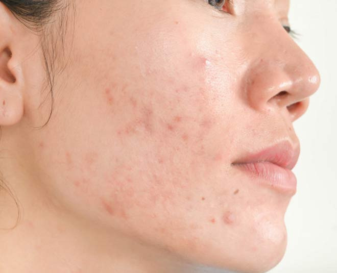 main cystic acne tips