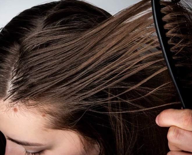 oily hair summer remedies main