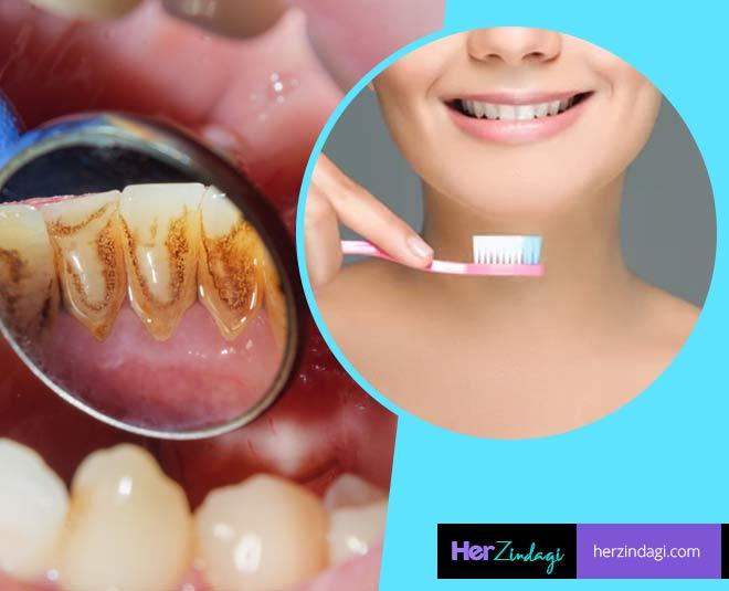 plaque in teeth