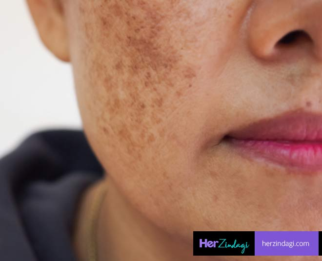 remedies for face pigmentation main