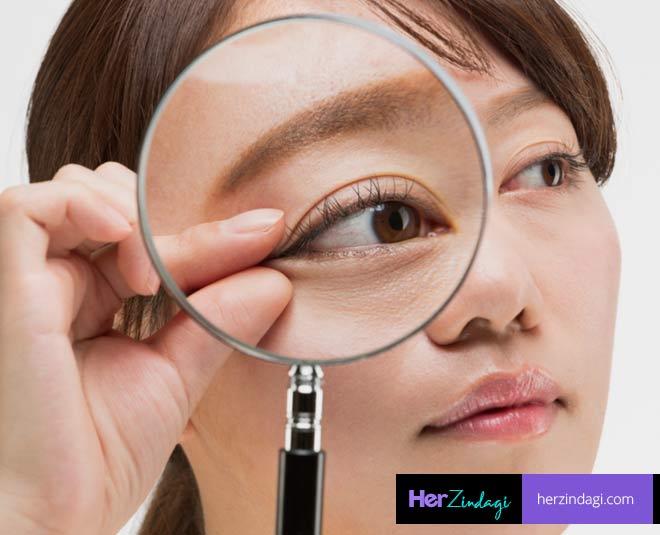 sagging eyelids home remedies main