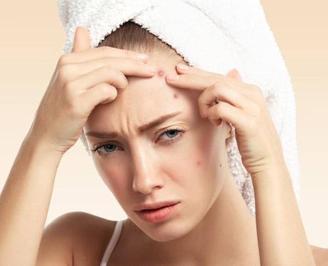 weird reasons causing acneMain